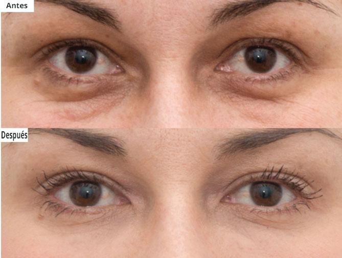 Láser Rejuvenecimiento Ojos Plasmage