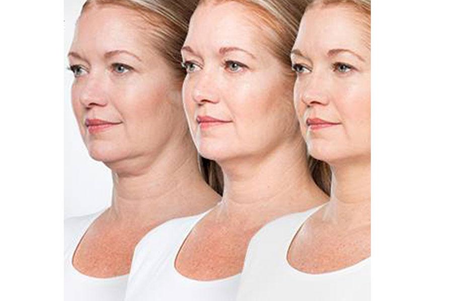 Tratamientos Faciales Belkyra