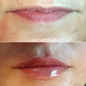 Tratamiento de aumento de labios